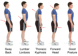 Bad Posture Example