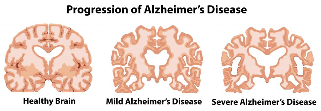 Sugar Shrinks Your Brain: Alzheimer's Disease is type 3 diabetes